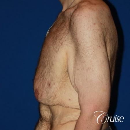 severe weight loss gynecomastia upper body lift - Before Image 3