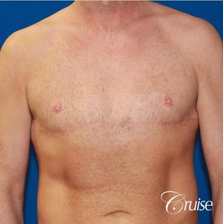 Free Nipple Graft male gynecomastia -  After Image 1