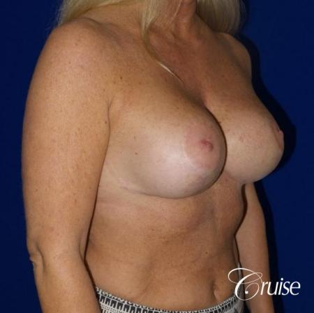 best breast lift with implants - After Image 4