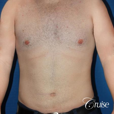 moderate chest gynecomastia and liposuction flanks -  After Image 1