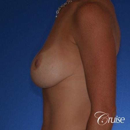 Best breast revision for low implants - Before Image 2