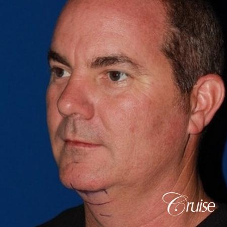 best pictures of chin augmentation with specialist - Before Image 3