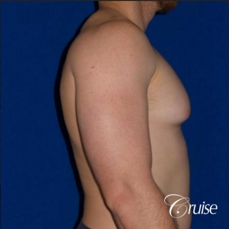 Dr. Cruise gynecomastia surgery photos - Before Image 4