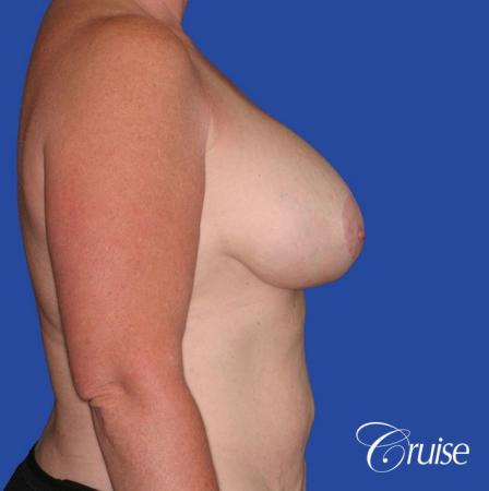 capsular contracture before and after pictures in Newport Beach -  After Image 3