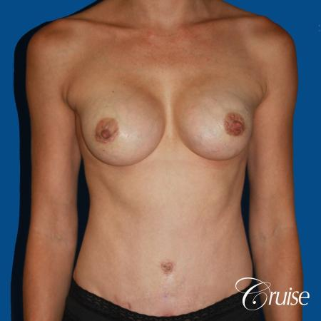 best ultra low tummy tuck scar with breast augmentation -  After Image 1