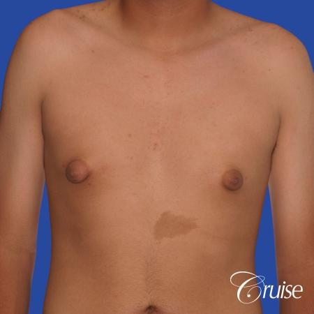gynecomastia patient gets nipple reduction for best results - Before Image 1