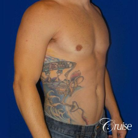 Mild Gynecomastia -Puffy Nipple -Areola Incision - After Image 4