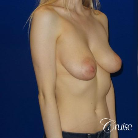 Breast Lift before and after Orange County - Before Image 2