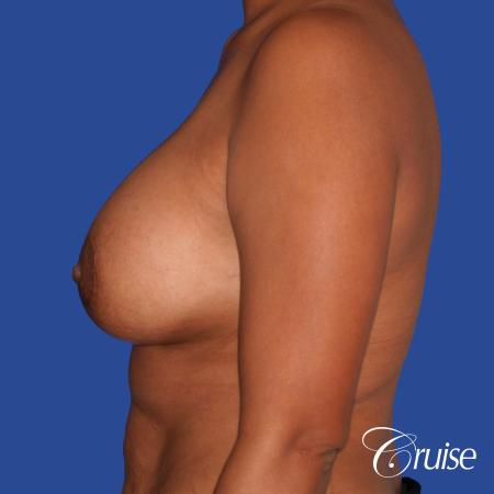 best breast lift donut with saline augmentation -  After 2