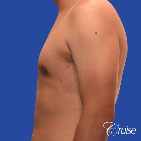 mild gynecomastia standard PA areola incision - After Image 2