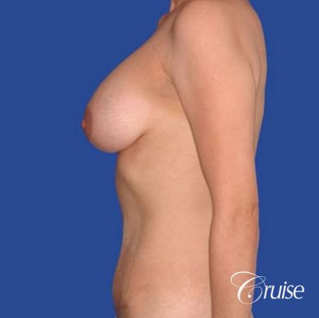 best mommy makeover incisions with saline implants -  After 2