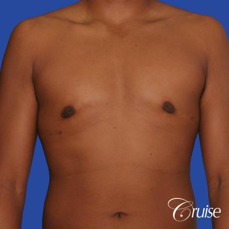24 yr. old gets gynecomastia surgery with best scars -  After Image 1