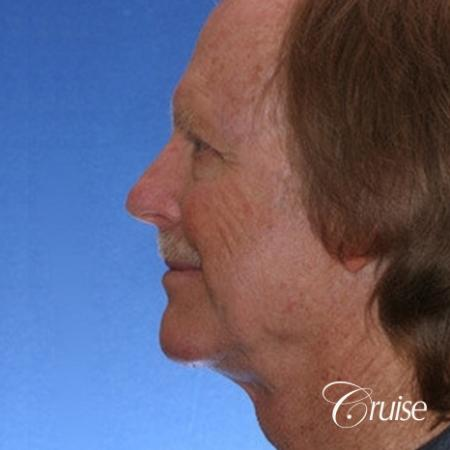 62 yr old with medium square chin augmentation -  After Image 2