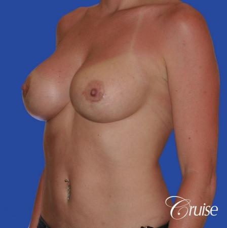 breast revision with silicone implant rupture -  After Image 2