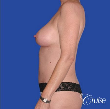 low mini tummy tuck with D cup  breast augmentation -  After Image 2