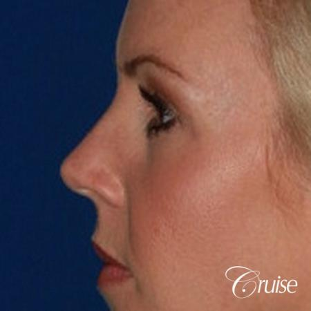 best upper eye lid results -  After Image 3
