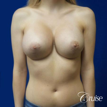 Breast Lift before and after Orange County -  After Image 1