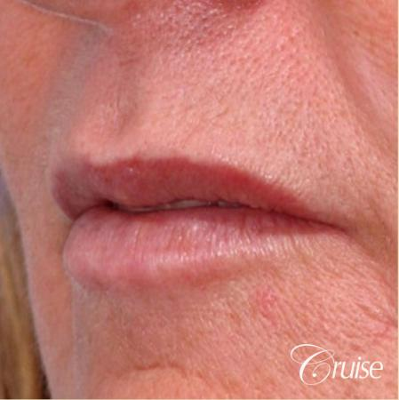 best lip augmentation with juvaderm - Before Image 2