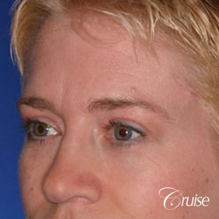 best specialist for upper eyelid surgery -  After Image 3