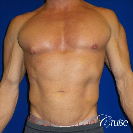 Body builder gynecomastia before and after pictures - Before Image 1