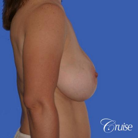 best saline breast reduction - Before and After Image 2