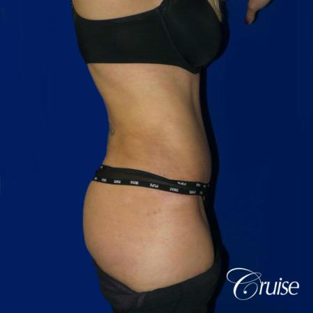 Tummy Tuck Standard Incision - After Image 4