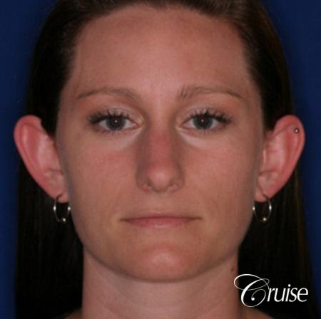 best female otoplasty in orange county - Before Image