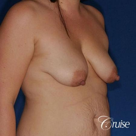 best results on young woman for breast lift anchor with saline augmentation - Before Image 4