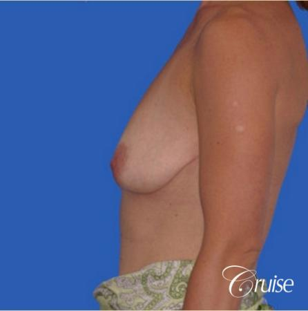 best breast lift anchor with silicone implants - Before and After Image 2