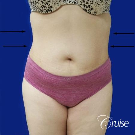 Best liposuction procedures dr cruise - After