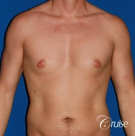puffy nipple on 35 yr old male - Before Image 1