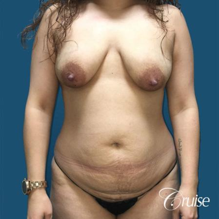 Extended Tummy Tuck, BBL, Breast Lift Anchor With Silicone - Before Image 1