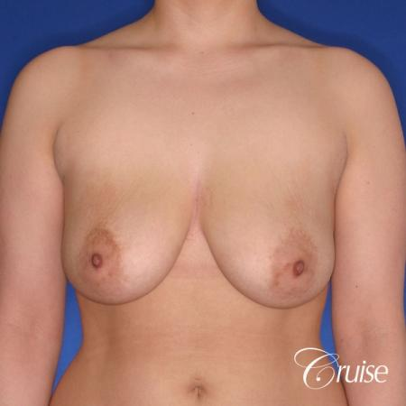 young woman who had best results for breast lift with saline implants - Before Image 1