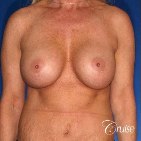 best breast lift anchor photos with HP 475cc implants -  After Image 1