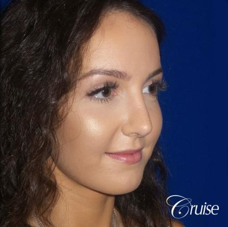 Rhinoplasty Dr. Cruise newport beach -  After Image 2