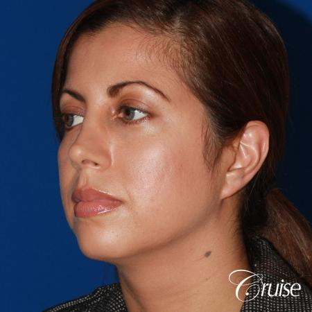 woman with large anatomic chin implant - Before Image 2