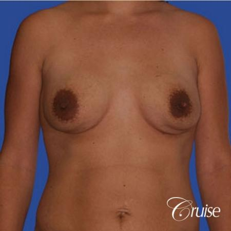 mini tummy tuck with silicone breast revision - Before Image 1
