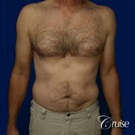Moderate Gynecomastia Pedicle - After Image