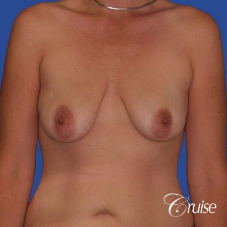 breast lift anchor on young woman - Before Image 1