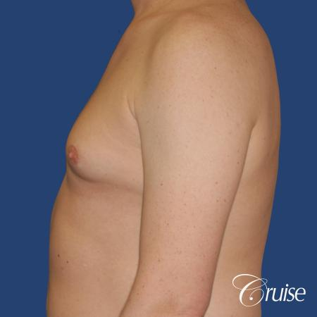 moderate gynecomastia on adult with donut lift scar - Before Image 2