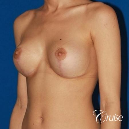 best breast lift revision with moderate profile silicone implants -  After Image 3