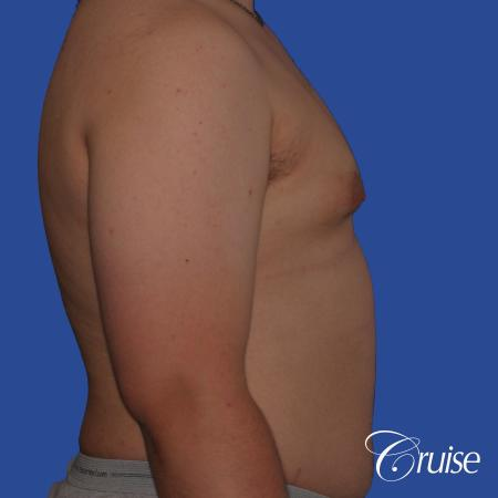 best scars for moderate gynecomastia - Before Image 3