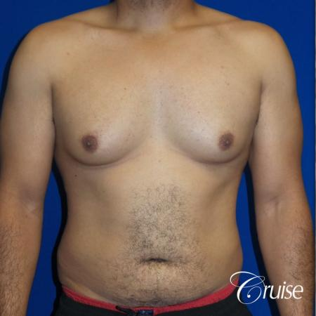 Best gynecomastia specialist in united states - Before Image 1
