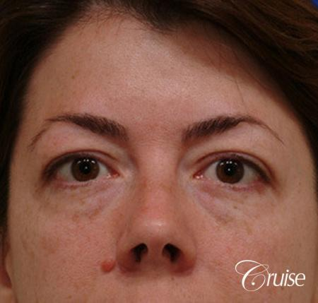 blepharoplasty specialist - Before Image