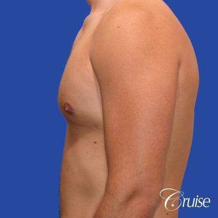 24 yr old body builder mild gynecomastia -  After Image 2