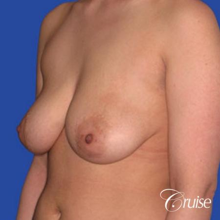 best round saline implants after breast reduction - Before and After 3
