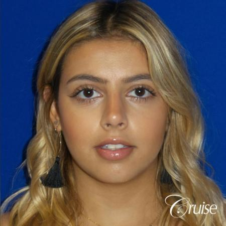 Rhinoplasty: Dorsal Hump & Droopy Tip Correction - After Image