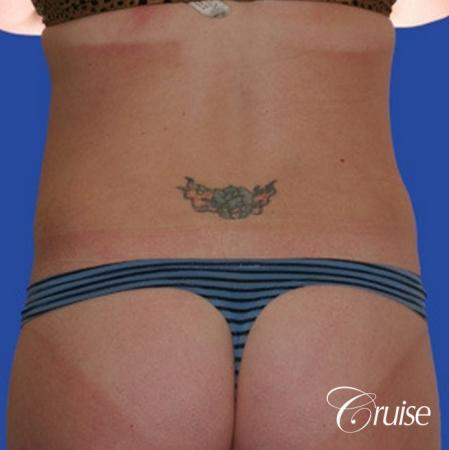 best skinny abs from liposuction abdomen and flanks -  After Image 2