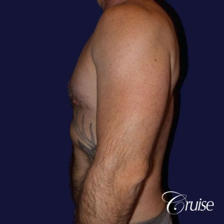 Moderate Gynecomastia -Areola Incision - After Image 5