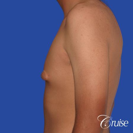 gynecomastia patient gets nipple reduction for best results - Before Image 2